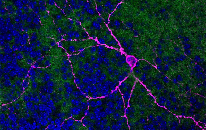 This image, taken by Katelyn Sondereker with a confocal laser scanning microscope, shows a melanopsin ganglion cell in magenta, surrounded by other cells in the retina.
